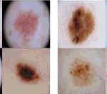 biemedical image task series (classification task)